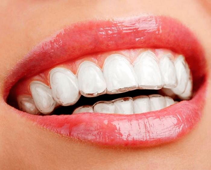 fotos de aparelhos de dentes transparentes alinhador estético invisível