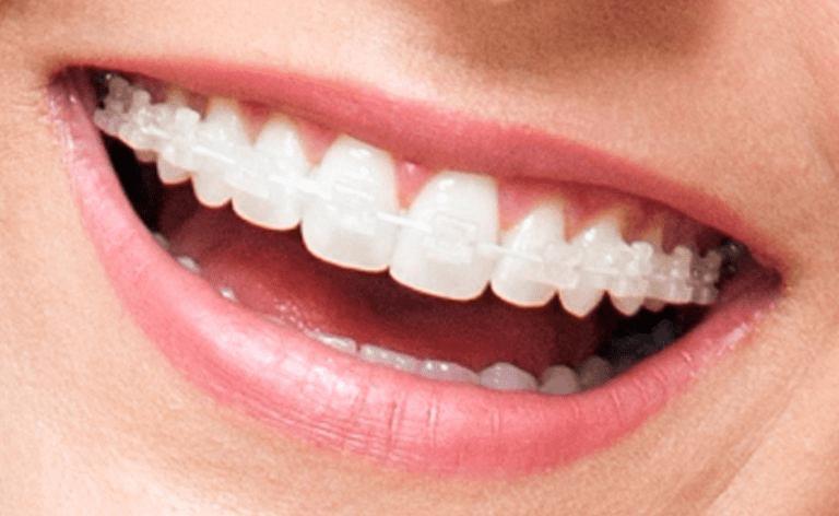 fotos de aparelhos de dentes transparentes aparelho fixo transparente estético
