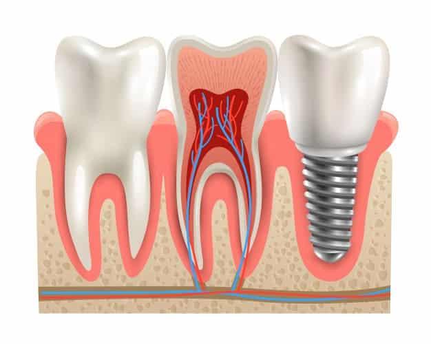 estrutura do dente