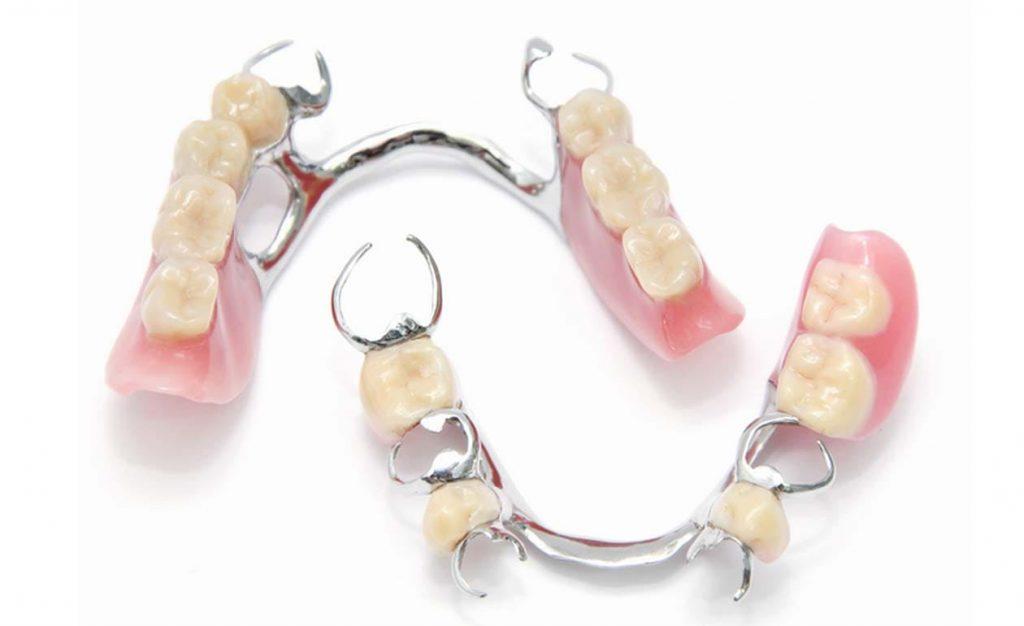 prótese dentária móvel