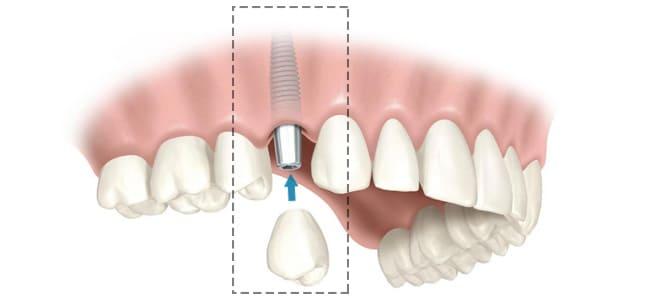 tipos de implantes dentarios fotos
