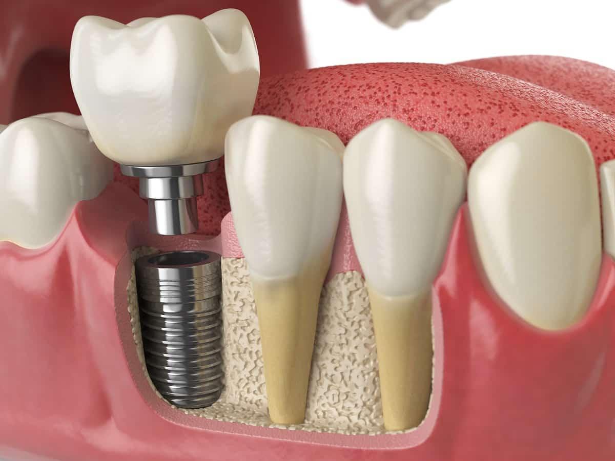 ortodôntico implante
