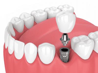 como é feito o implante dentário