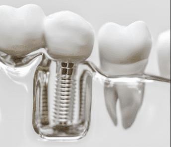 implante dentário fotos