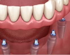 tipos de implante dentário fotos