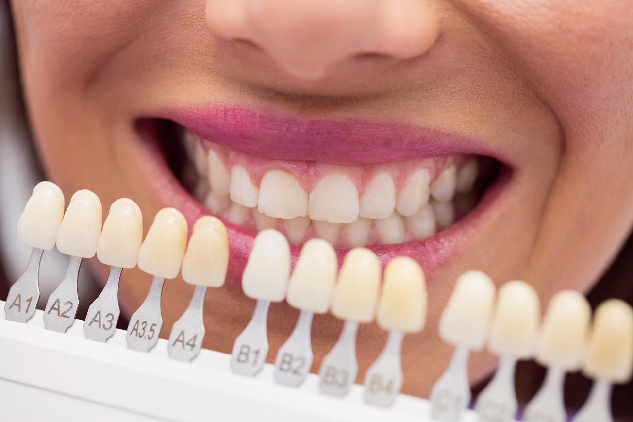 lente-de-contato-dental-preco